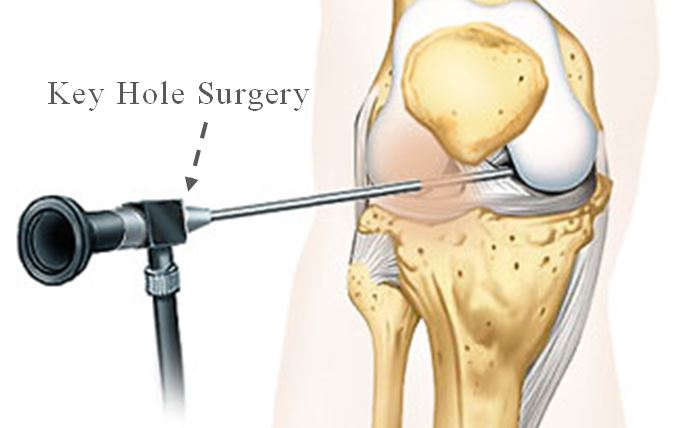 acl-reconstruction-surgery